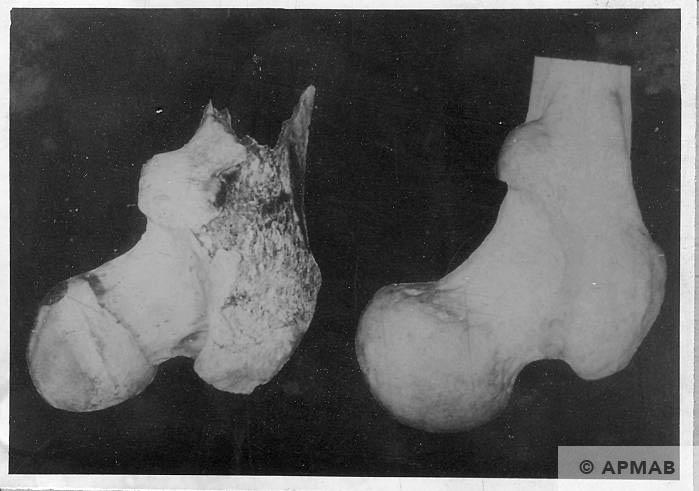 Human bones found in the crematory oven in Trzebionka. APMAB 6693